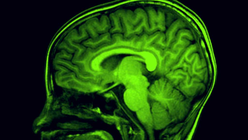 MRI side view of brain