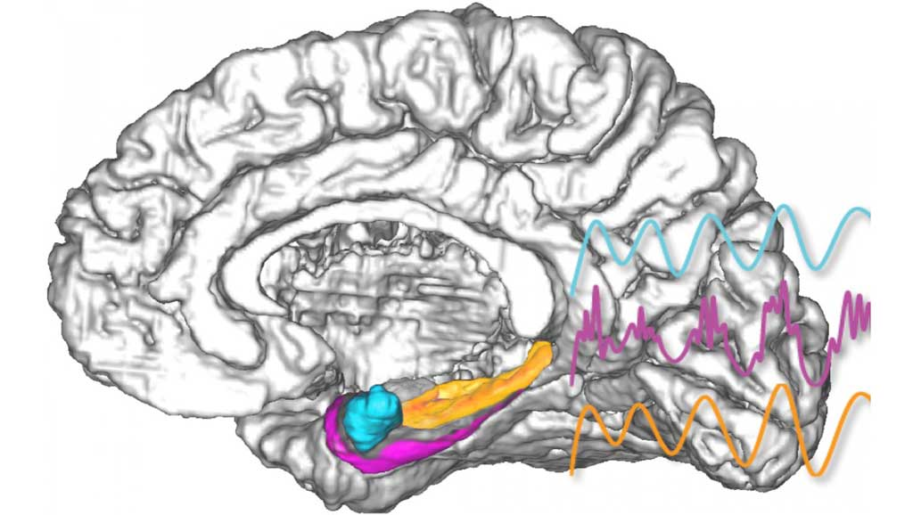 slice with amygdala highlighted