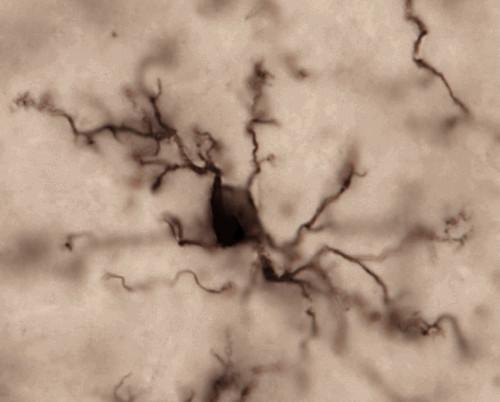 microscope view of microglia