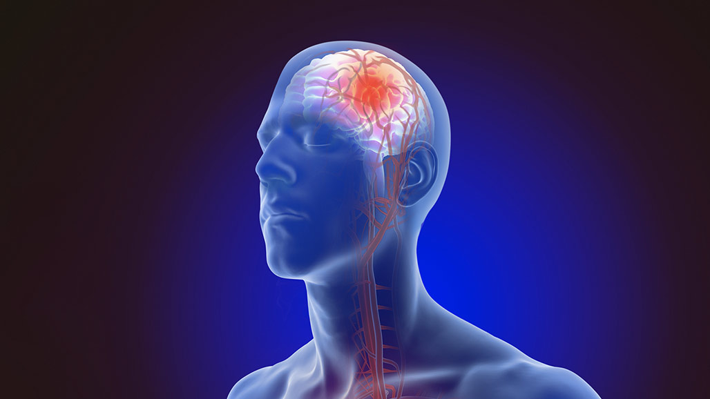 Rezultat iskanja slik za brain stroke