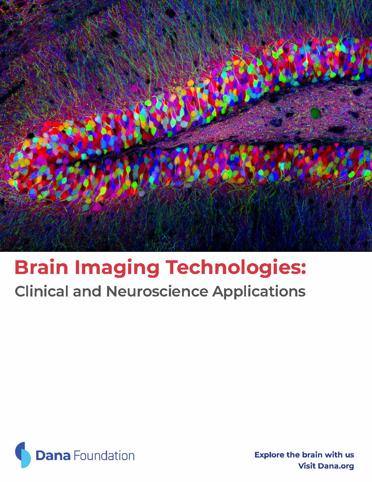 Imaging Technologies and Their Applications in Neuroscience