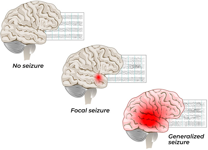 illustration comparing focal and generalized seizures